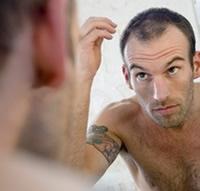 comment faire pour ne pas perdre ses cheveux calvitie des hommes. Black Bedroom Furniture Sets. Home Design Ideas